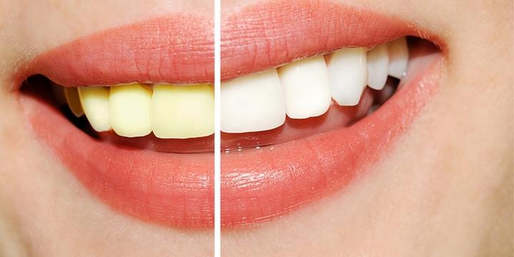 7. Bad Breath and Yellowish Teeth