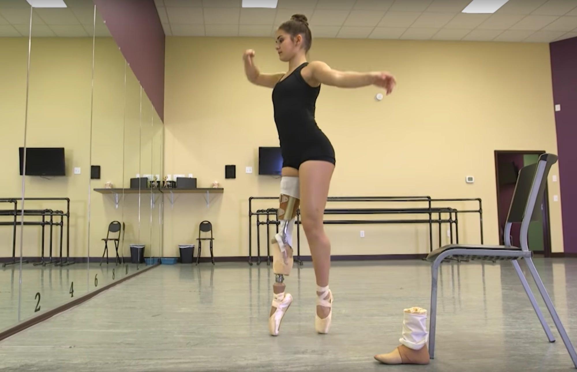 dancer-beat-cancer-to-perform-v4
