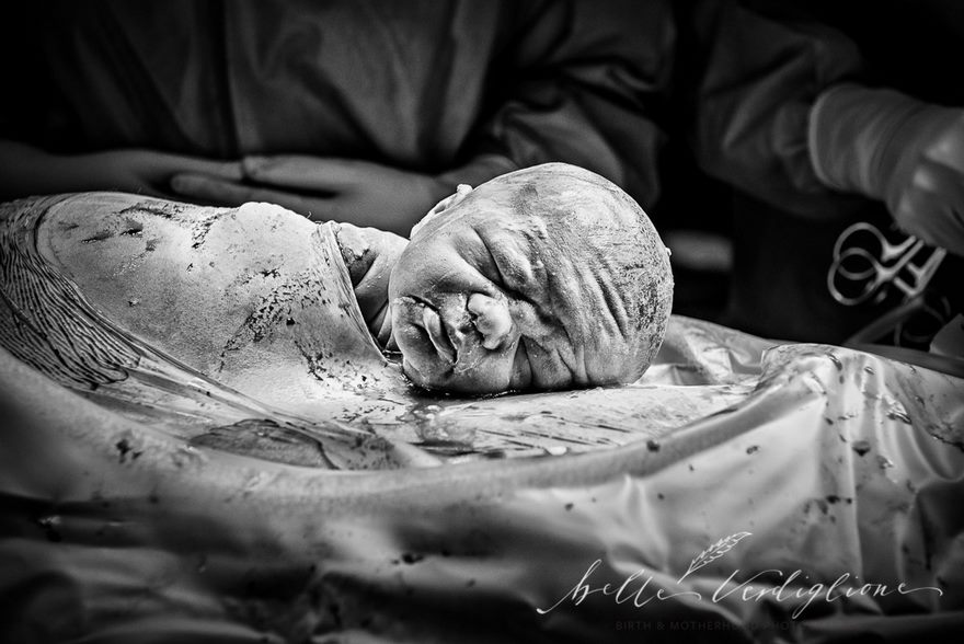 Gentle Caesarean Birth