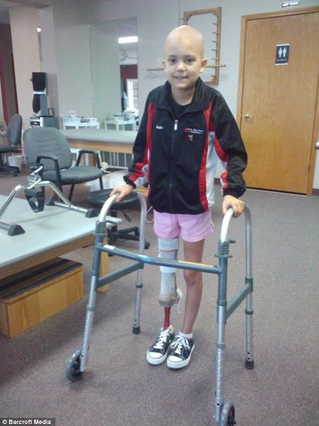 Lost Her Leg Due To Cancer -3