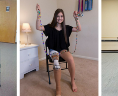 Schoolgirl Amputee Who Lost Her Leg Due To Cancer