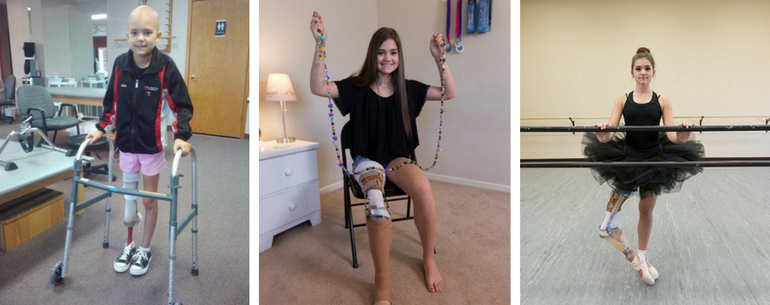 Schoolgirl Amputee Who Lost Her Leg Due To Rare Bone Cancer, Makes An Unbelievable Recovery