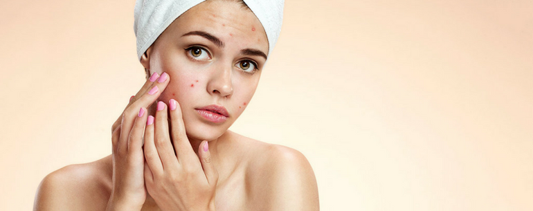 17 Tips For Reducing Acne In Teenage