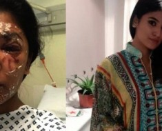 Make-up After An Acid Attack