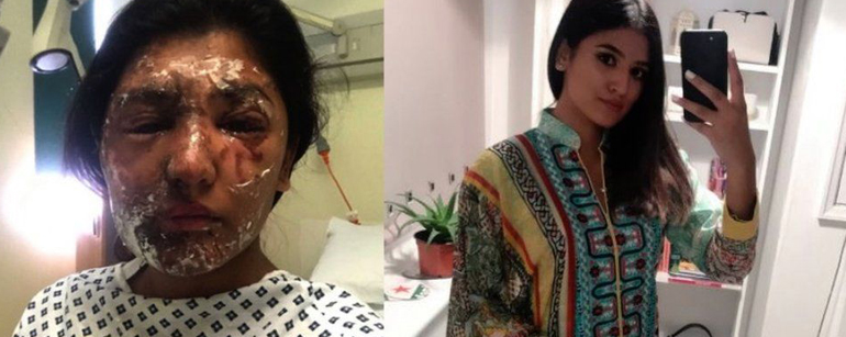 How Do You Do Your Make-up After An Acid Attack?