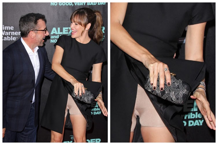 Embarrassing Celebrity Wardrobe Malfunctions