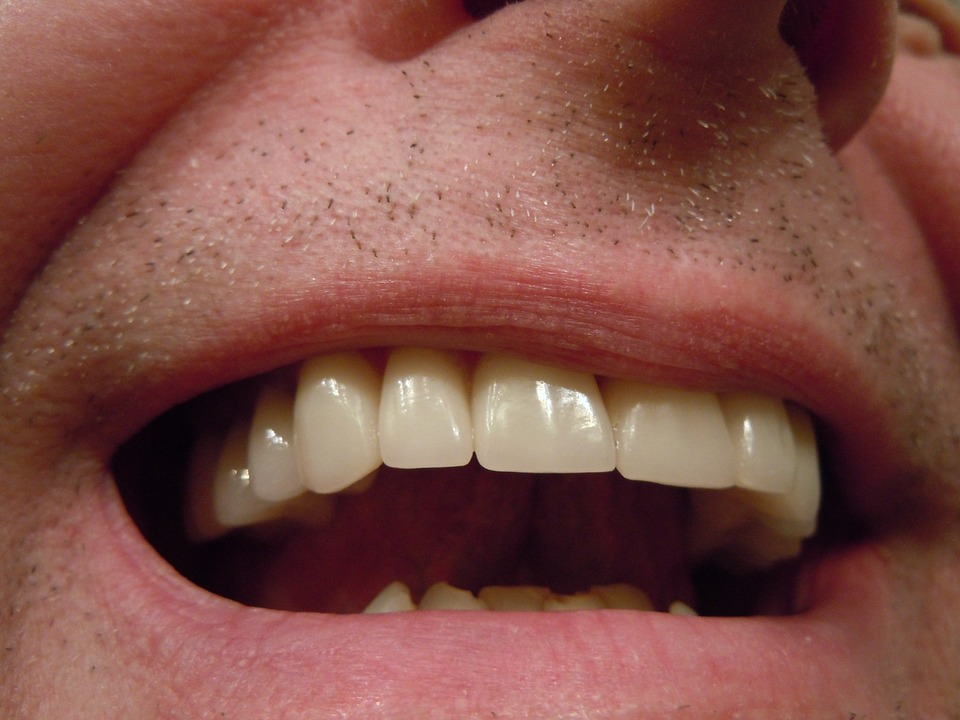 Better Dental Hygiene Leads To A Healthier Body 10