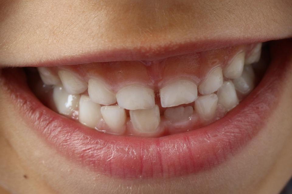 Better Dental Hygiene Leads To A Healthier Body 7