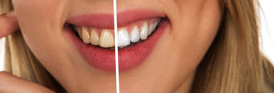 Better Dental Hygiene Leads To A Healthier Body