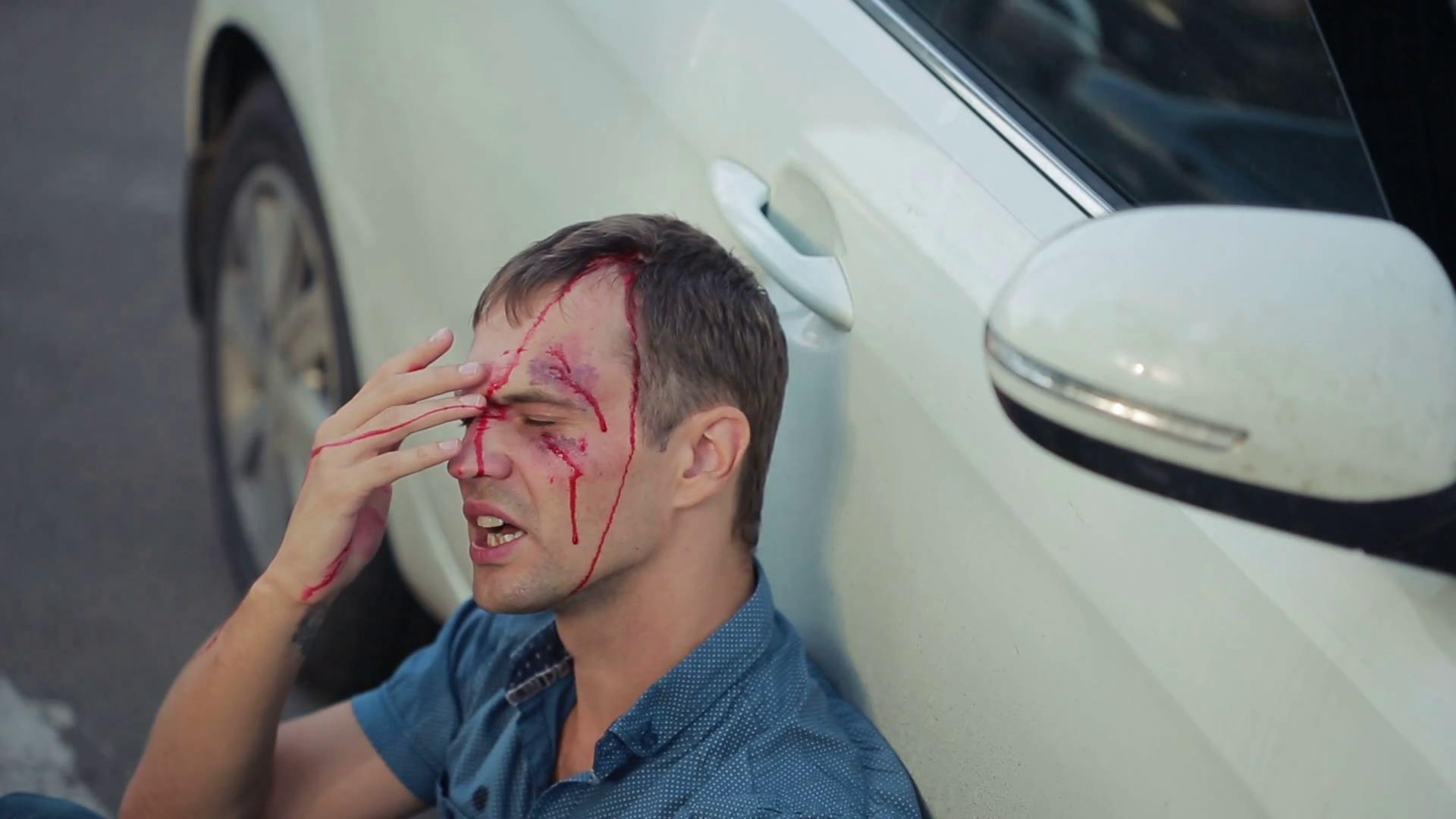 Tackle Head Injury Litigation