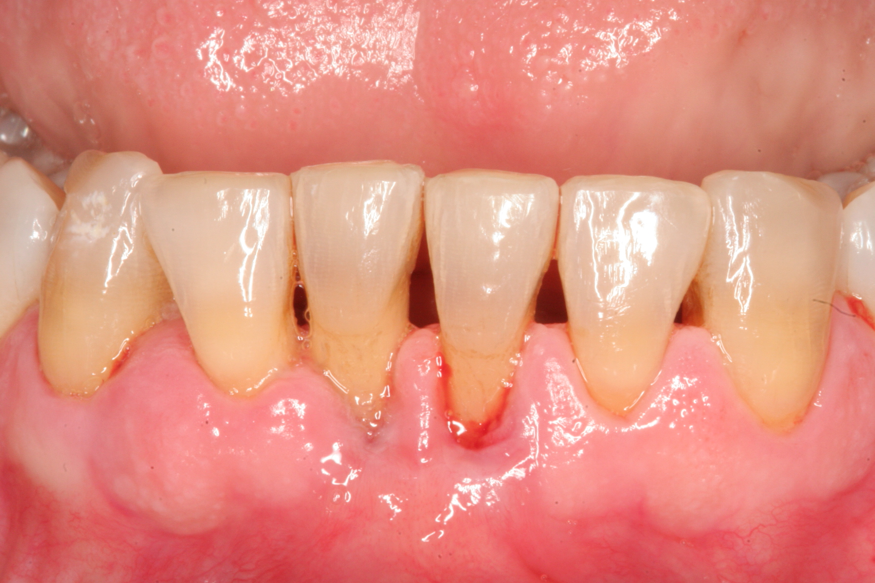 Diseases of Gums