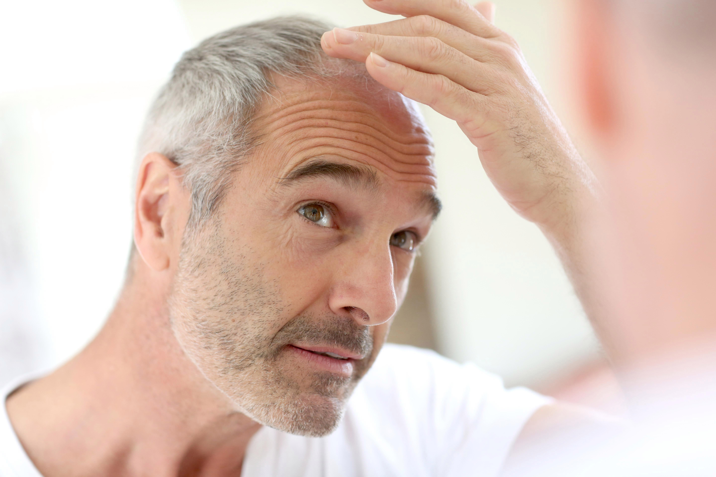 balding and graying hair