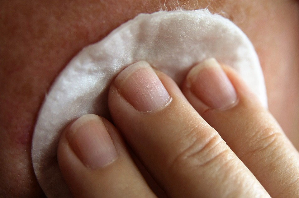 Blackhead Removal Guide