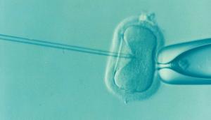 IVF Procedure Costs