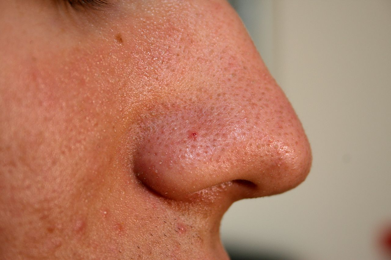 Treat Blackheads_4
