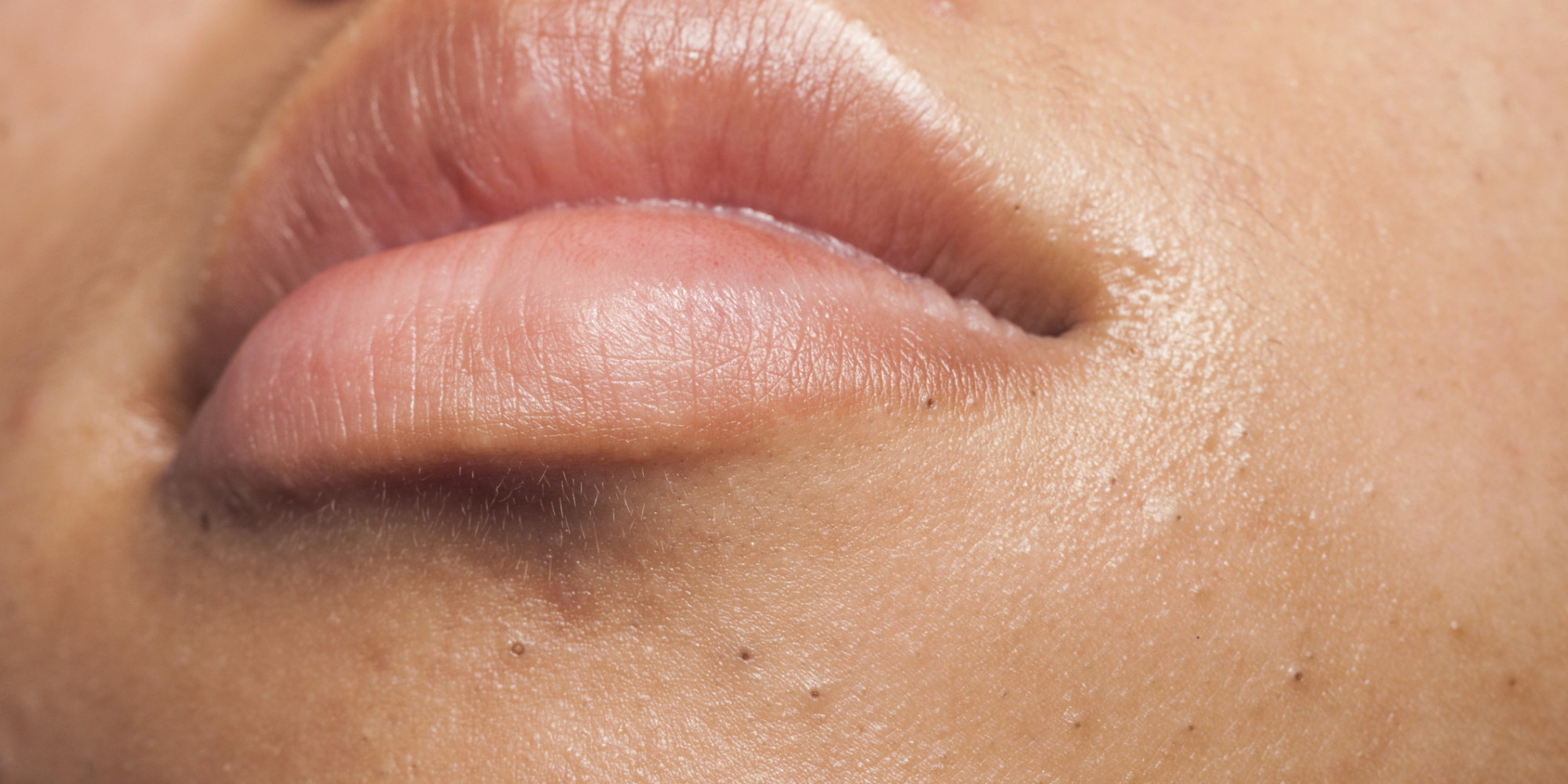 Blackheads pimple under the lips area
