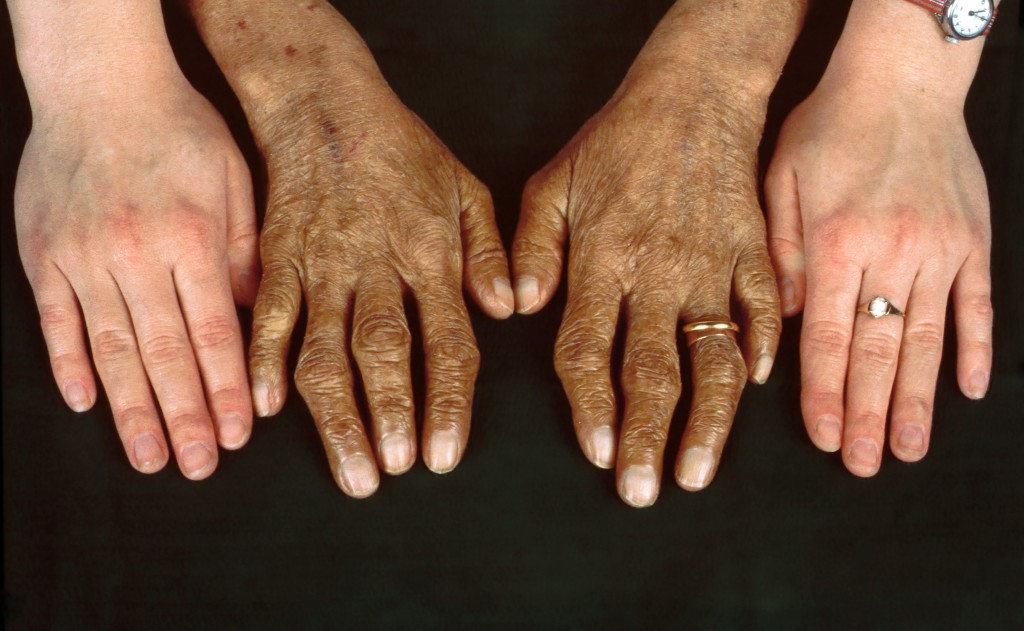 Here is How Hemochromatosis Can Affect You