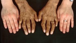 Hemochromatosis, Hand Comparison