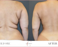 Health Benefits of Liposuction