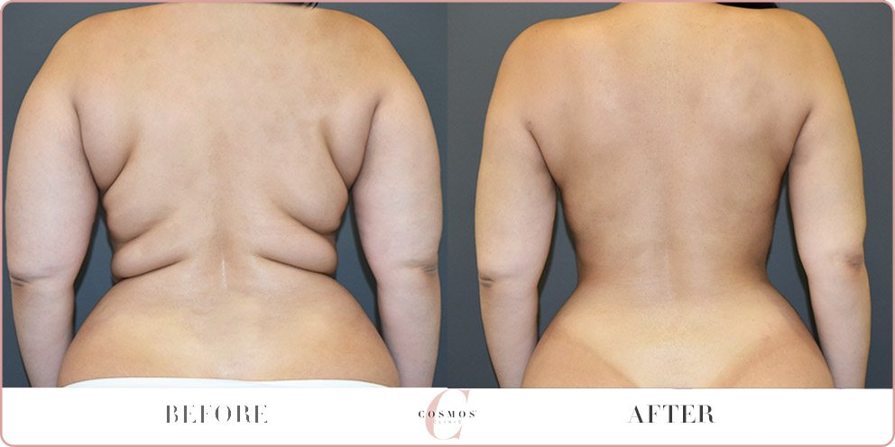 7 Vital Health Benefits Of Liposuction