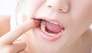 Handle Your Wisdom Teeth Issues