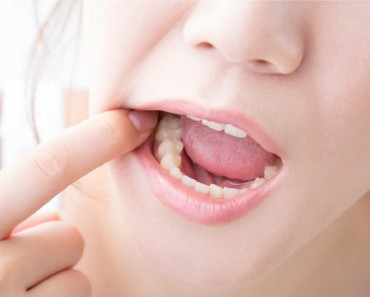 Handle Your Wisdom Teeth Issues