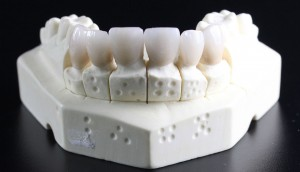 tooth-replacement