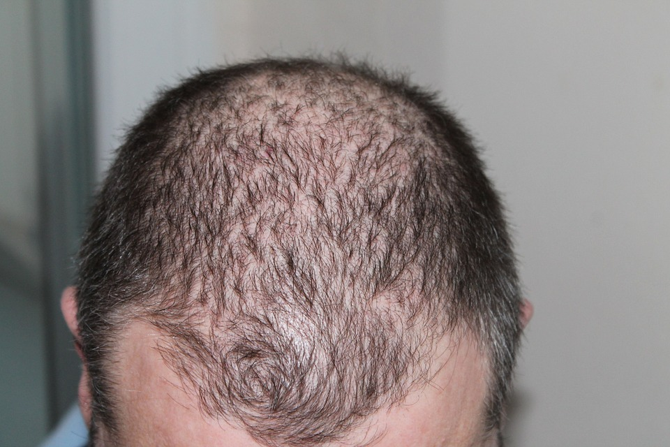 Looking To Get A Hair Transplant? Turkey Beckons You