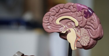 Epidural Hematoma Cerebral Palsy
