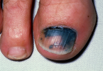 Ridges On Toenails