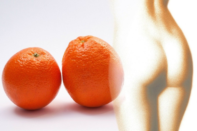 Cellulite treatment and prevention